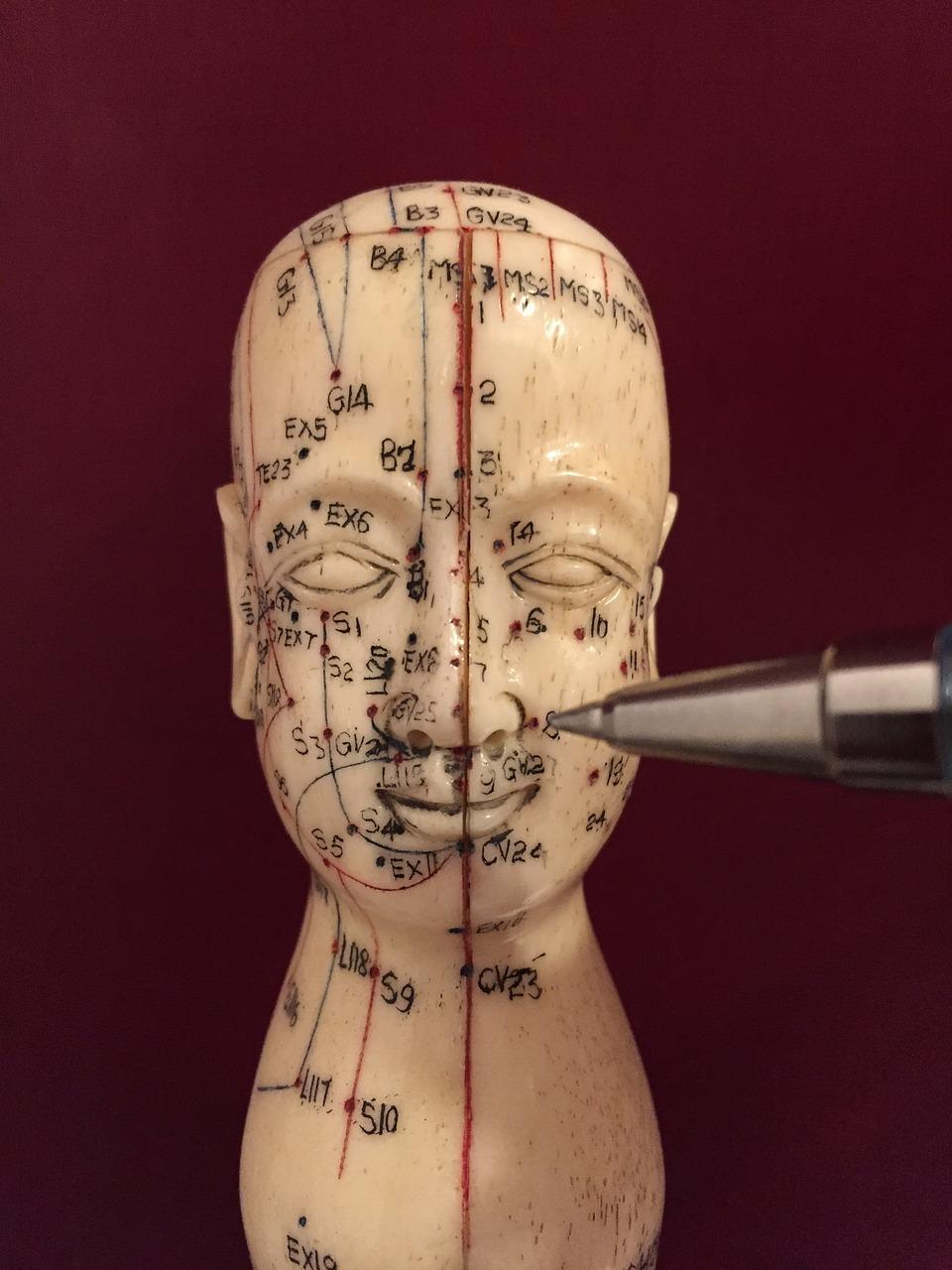Migrena – jak ją leczyć? Leczenie migren Białystok, Śląsk. Akupunktura